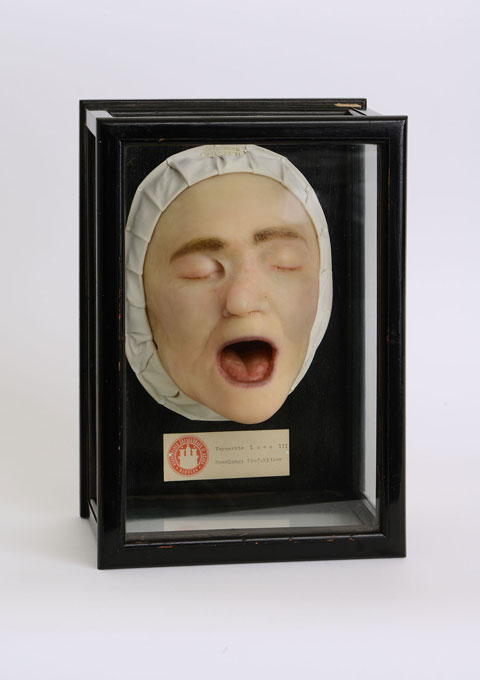 Wax moulage of a face with syphilis scars,  Max Broyer, ca. 1925